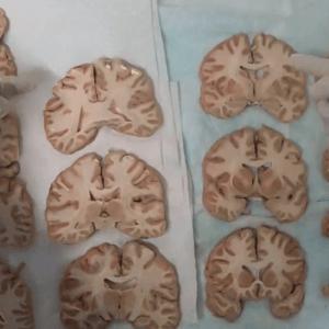Internal Cerebrum